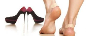 Появление мозолей от новой обуви, как этого избежать